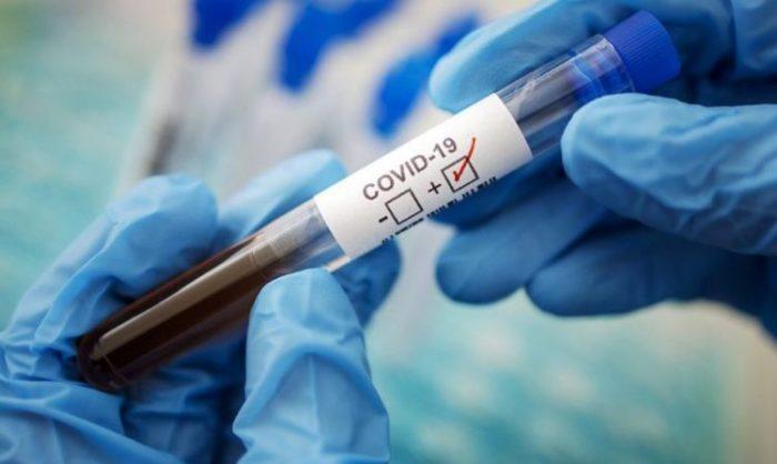 Где сделать тест на антитела к коронавирусу в Москве