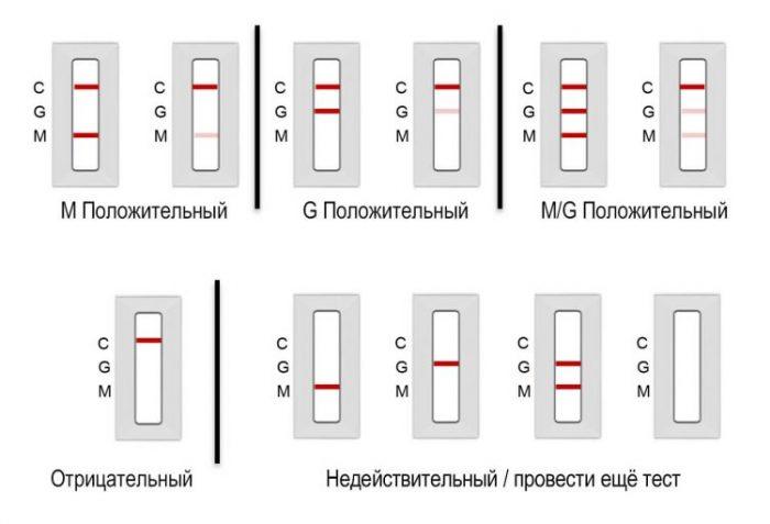 ПЦР тест на коронавирус — что это такое и как проводится анализ